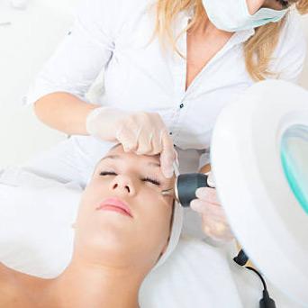 Laserowe usuwanie zmian skórnych